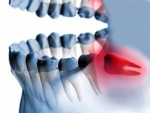 wisdom tooth x-ray Dr Felts Chattanooga TN