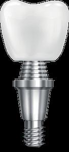 single implant model Chattanooga Periodontics & dental Implants, Chattanooga TN