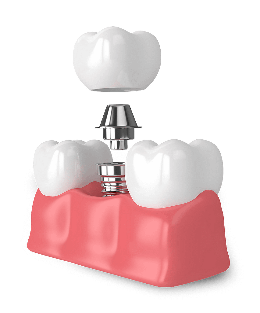 Implant model Chattanooga TN