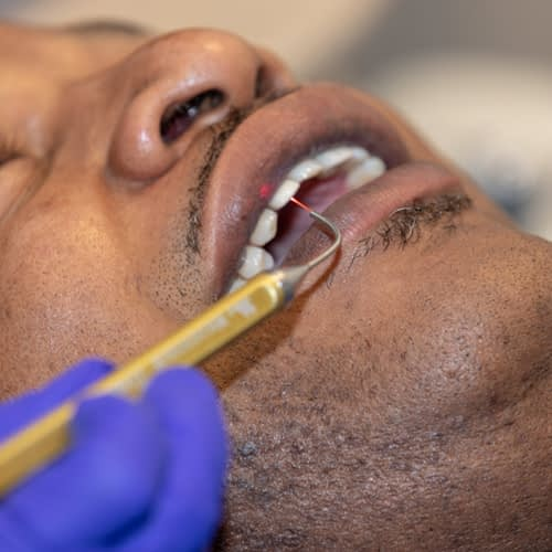 A patient getting LANAP treatment at Chattanooga Periodontics & Dental Implants Chattanooga TN