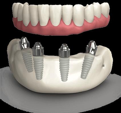TeethXpress Model Chattanooga TN