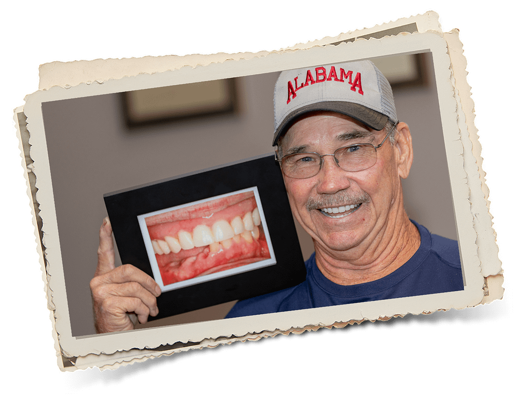 Patient showing a picture of a before and after after implant supported denture treatment at Dr Felts Dr Felts and his daughter Dr Felts Randall Chattanooga TN